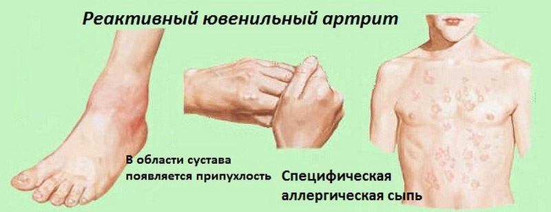 Если не лечить реактивный артрит фото