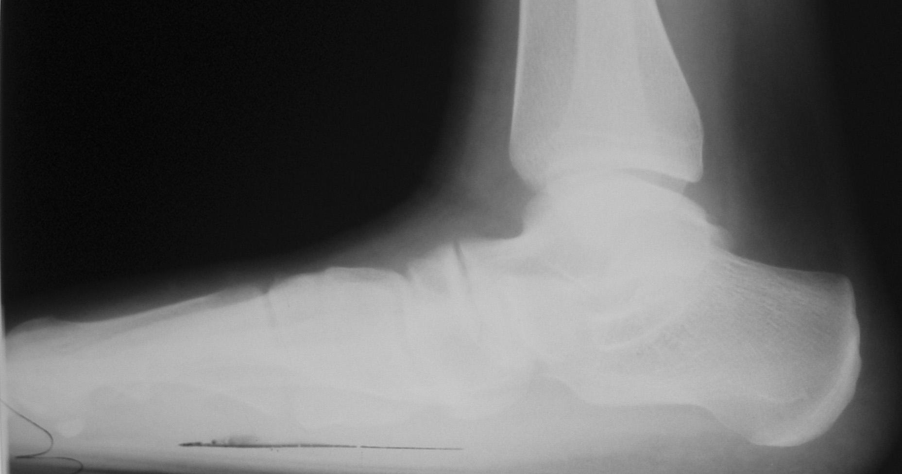 рентгеновский снимок стопы до операции