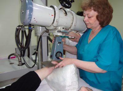 рентгенотерапия при плантарном фасциите
