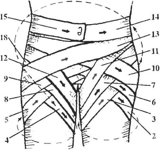 Схема наложения двусторонней колосовидной повязки