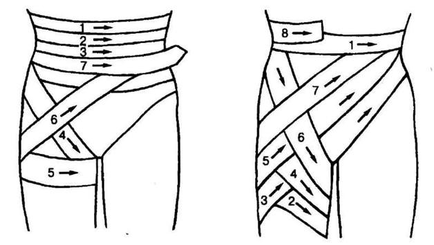 Схема наложения задней и передней нисходящей повязок