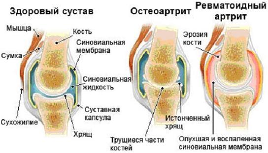 симптомы остеоартрита