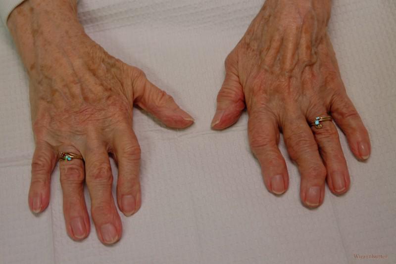 Симптомы остеоартроза периферических суставов