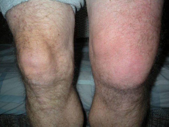 Симптомы поражения колена