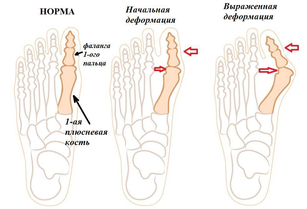 Как проходит операция по удалению косточки на большом пальце ноги