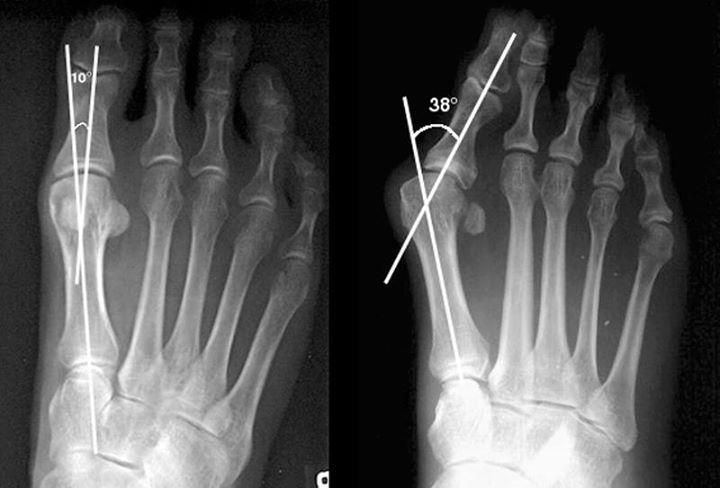 Первый и второй типы искривления большого пальца