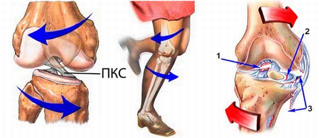 Травма связки коленного сустава