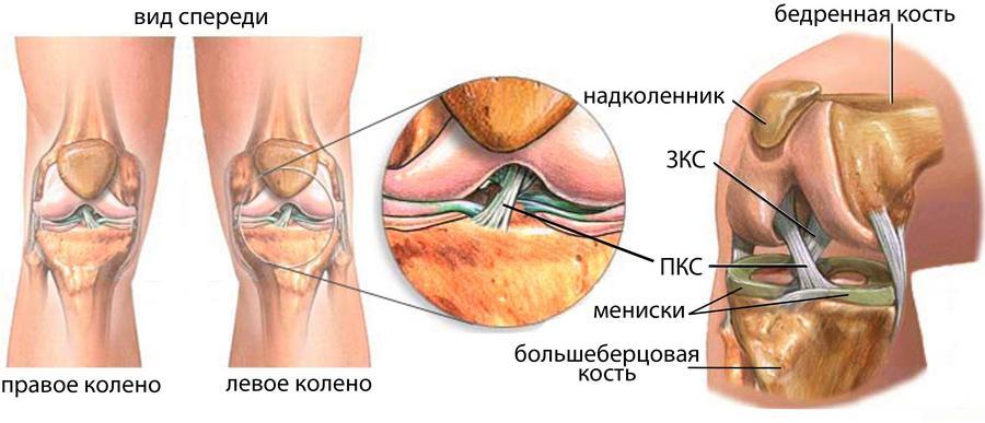 Операция на крестообразную связку коленного сустава