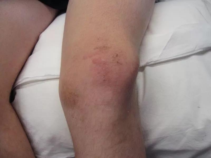 Болезни коленных суставов у детей
