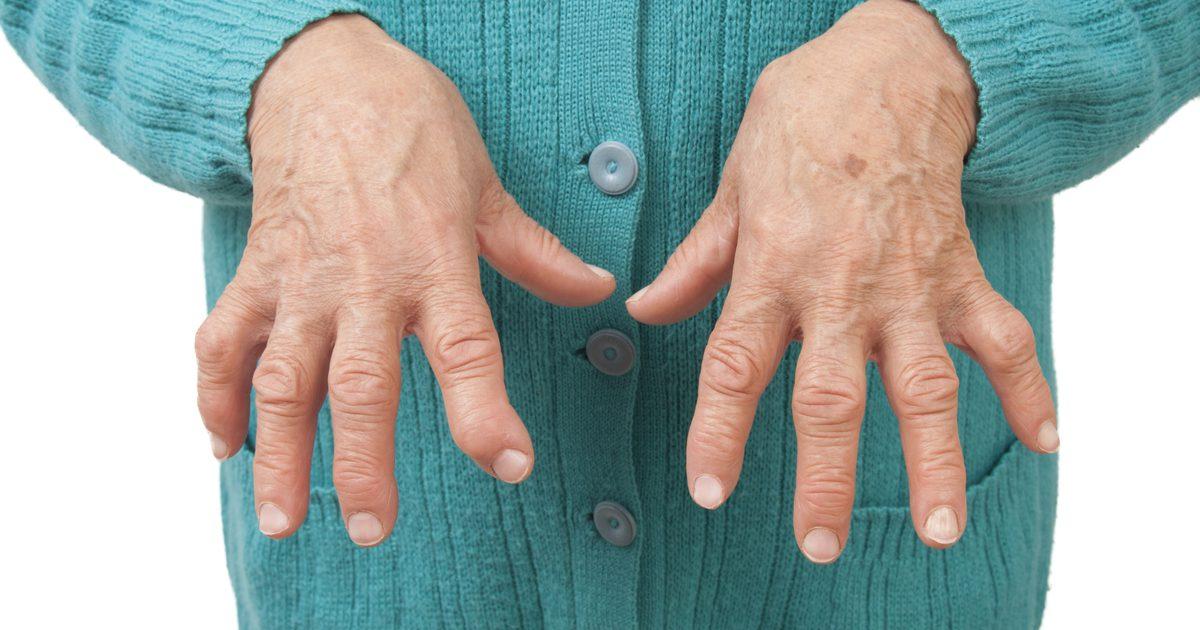 узелковый полиартрит