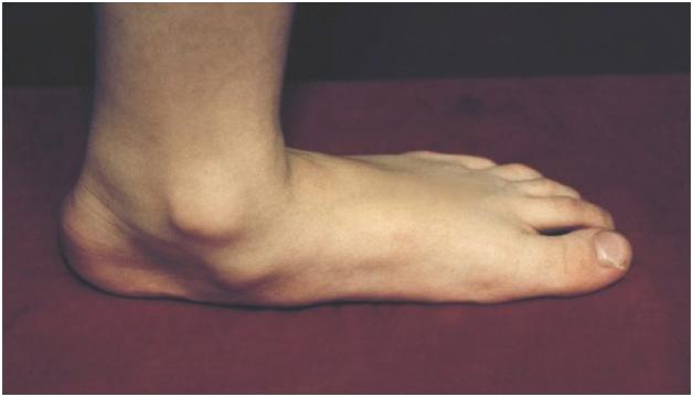 Поперечное плоскостопие оперативное лечение