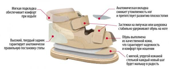 варусная ортопедическая обувь
