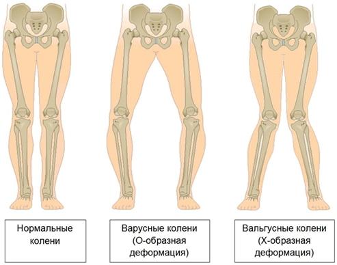 видф деформации нижних конечностей