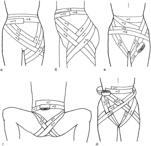 Изображение - Наложение повязки на тазобедренный сустав vidy-kolosovidnoy-povyazki