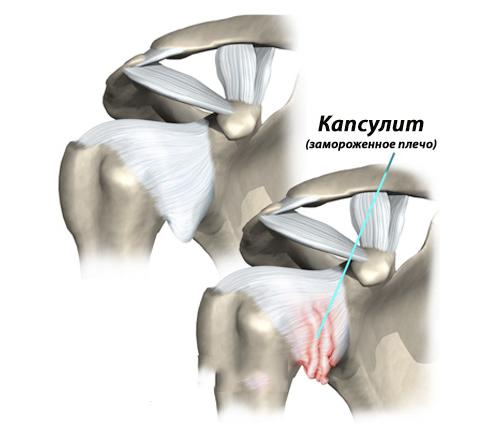 Воспаление костей плечевого сустава