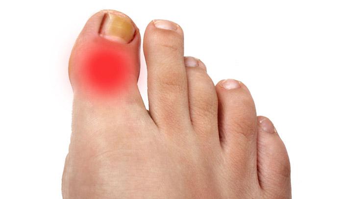 Воспаление сустава большого пальца ноги