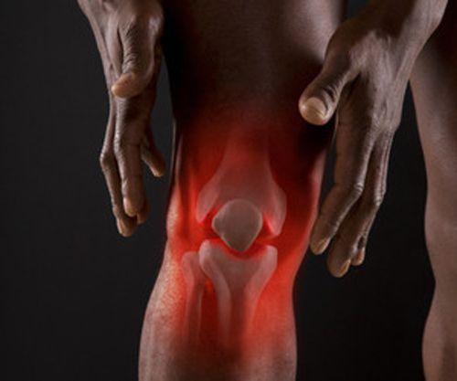 Воспалительные болезни суставов