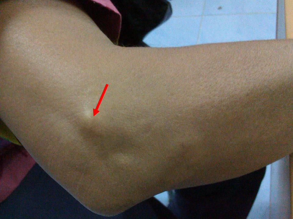 Изображение - Препараты для лечения артроза локтевого сустава vypirayushhie-shishki