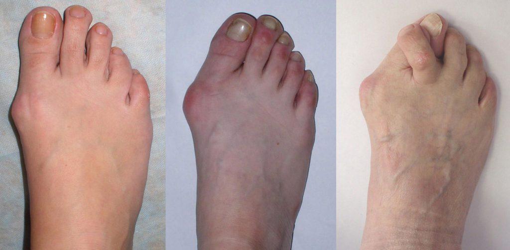 Воспаление сустава большого пальца на ноге