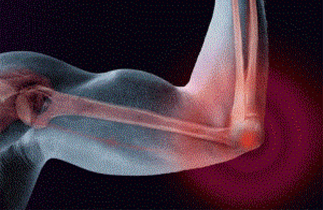 Болезни локтевых суставов рук симптомы лечение