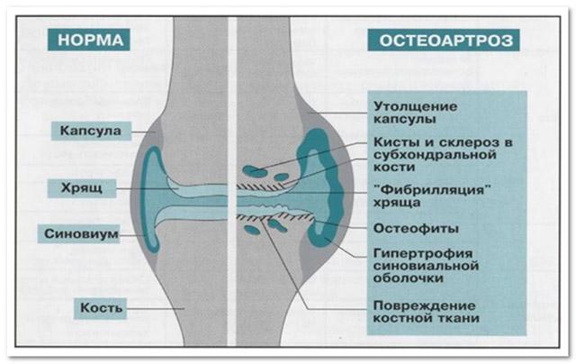 Артроз межфаланговых суставов стопы и кистей рук