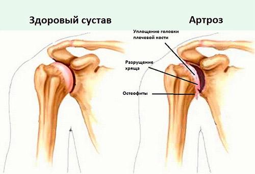 Изображение - Состав плечевого сустава artroz