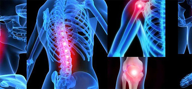 виды болезней суставов