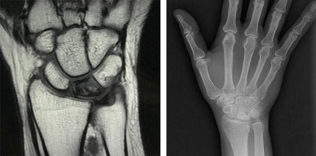 Болит сустав кисти руки что делать