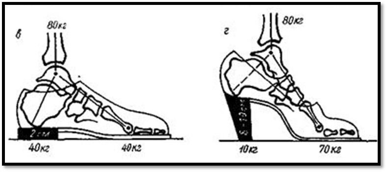 Деформация косточки