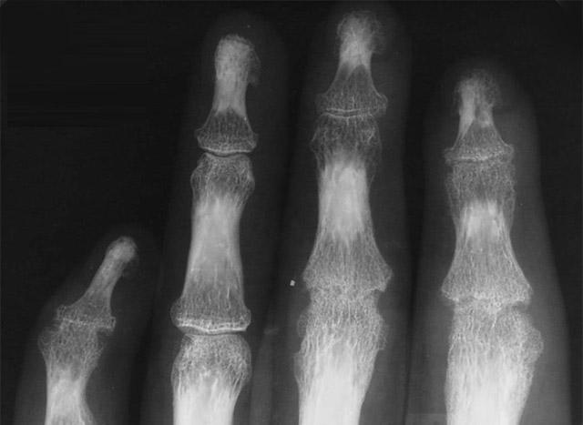 Диагностика артроза межфаланговых суставов