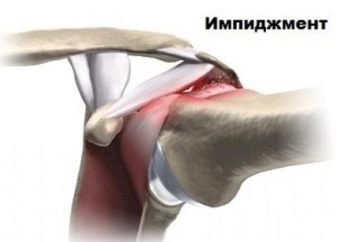 Изображение - Состав плечевого сустава impidzhment-sindrom
