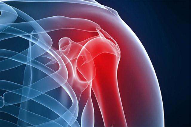 Одна из причин плечевого артроза — острый или хронический артрит