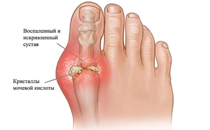 Артрит большого пальца симптомы и лечение фото thumbnail