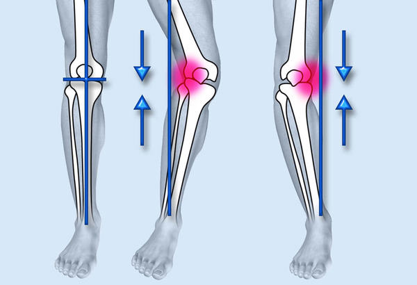 При потере стабильности коленного сустава требуется хирургическая операция