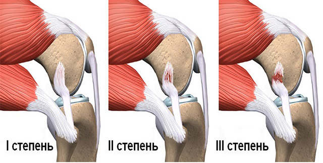 Осложнения после растяжения связок коленного сустава лечение коленного сустава артроз видео