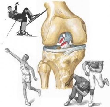 Сильный удар по колену