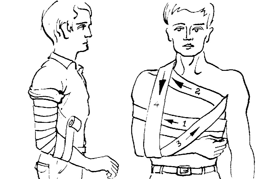 Изображение - Для бинтования локтевого сустава применяют повязку spiralevidnaya-i-kosynochnaya-povyazki
