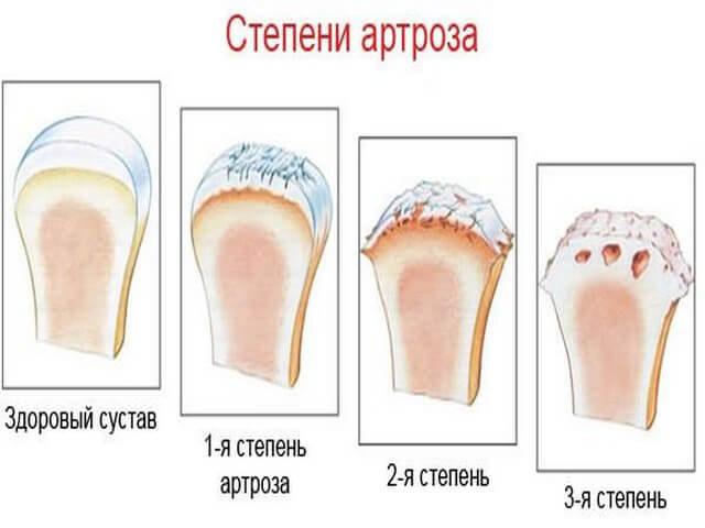 Степени плечевого артроза