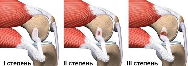 Степени повреждения коллатеральных связок коленного сустава