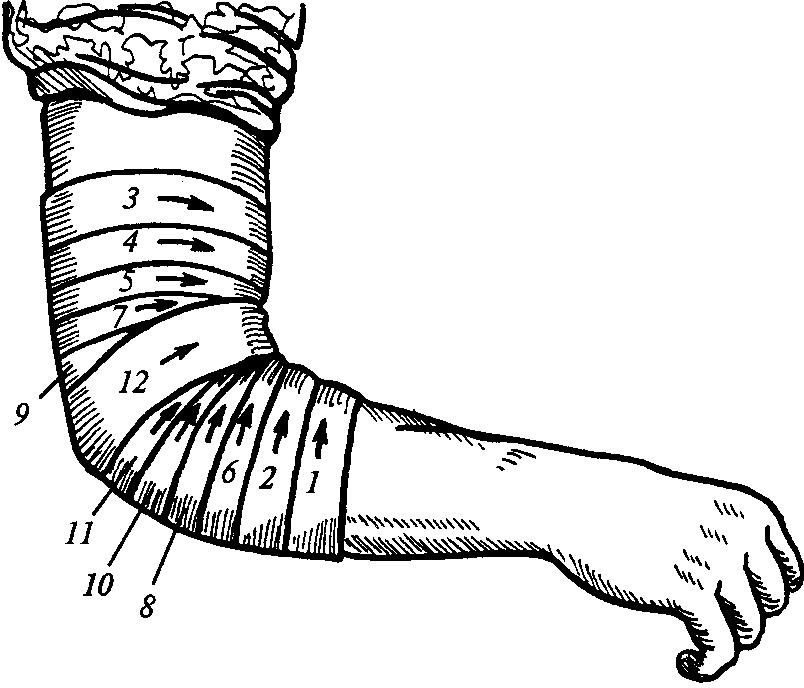 Сходящаяся фиксирующая повязка