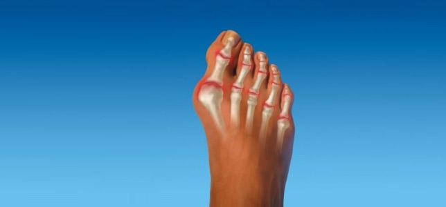 лечение артроза или артрита ноги