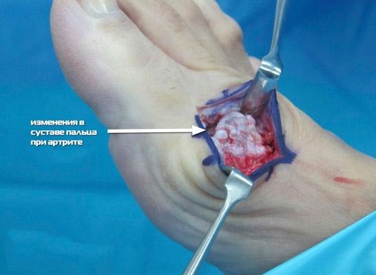 Вправление косточки хирургическим путем