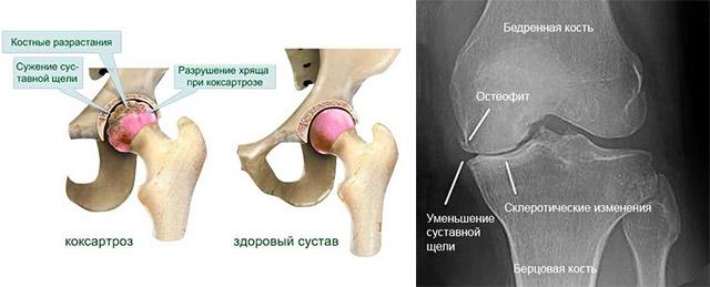 Разрушение тазобедренного сустава лечение