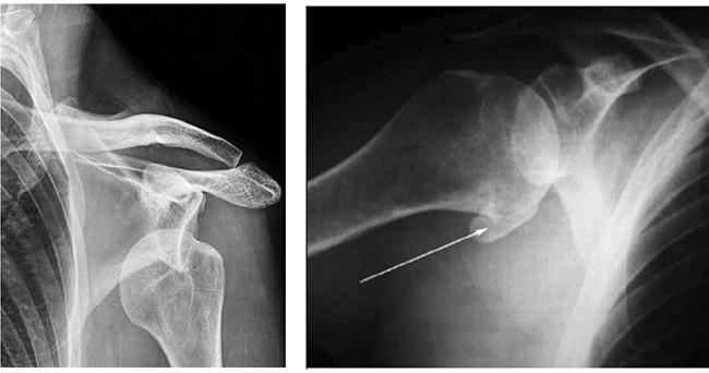 Вывих и артроз плеча