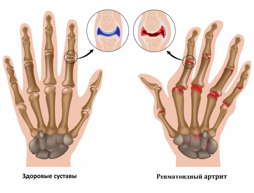 Лечение разных форм патологии