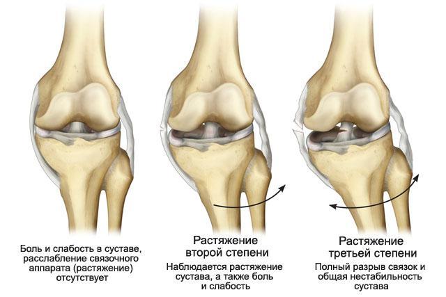 Связки в коленном суставе