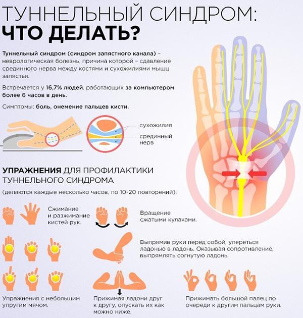 Изображение - Воспаление сустава большого пальца руки лечение tunnelnyj-sindrom