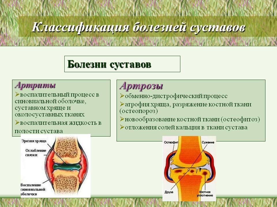 Классификация болезней суставов