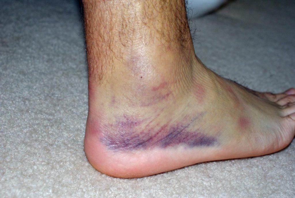 Боль в голеностопе при ходьбе лечение