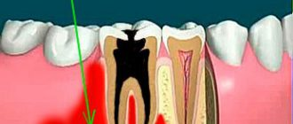 Одонтогенный остеомиелит челюстей